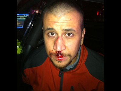 George-Zimmerman-with-bloody-nose-jpg