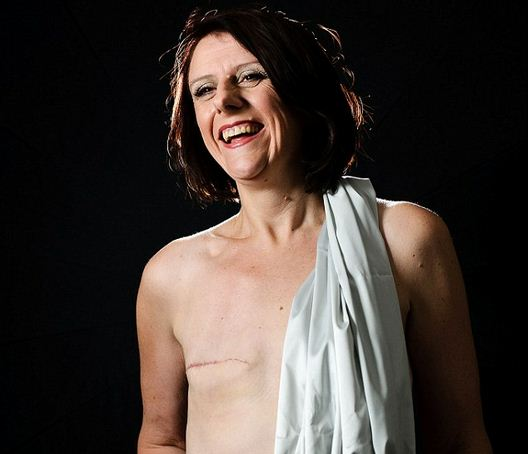 joanne-jackson-mastectomy-photos-banned-from-facebook